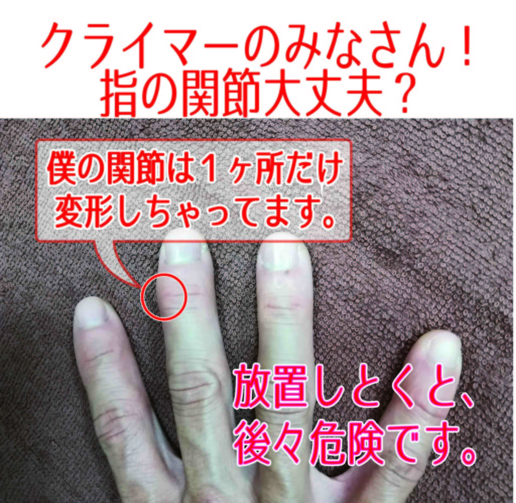 クライミング指1